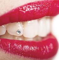 Zahnschmuck Brilli